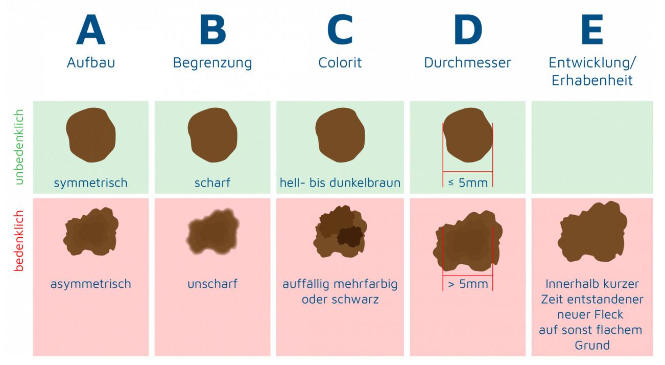 ABCDE-Regel zur Erkennung von Hautkrebs
