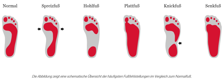 Eine Übersicht verschiedener Fußabdrücke und den dazugehörenden Fußfehlstellungen