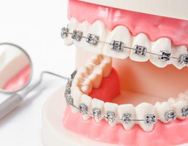 Zahnspangen – Metallene Rettung fürs Gebiss