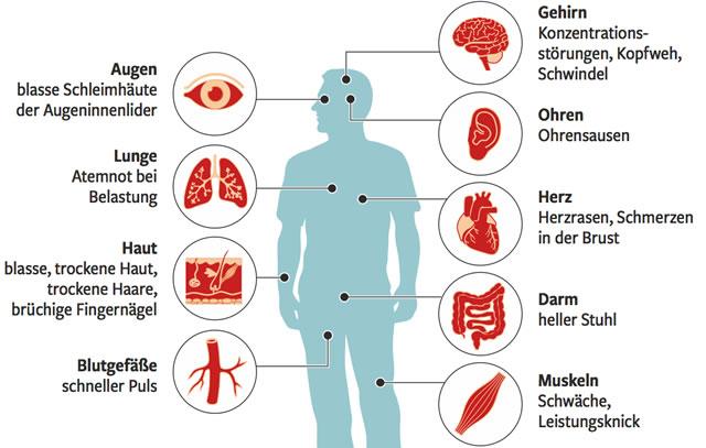 Symptome bei Eisenmangel
