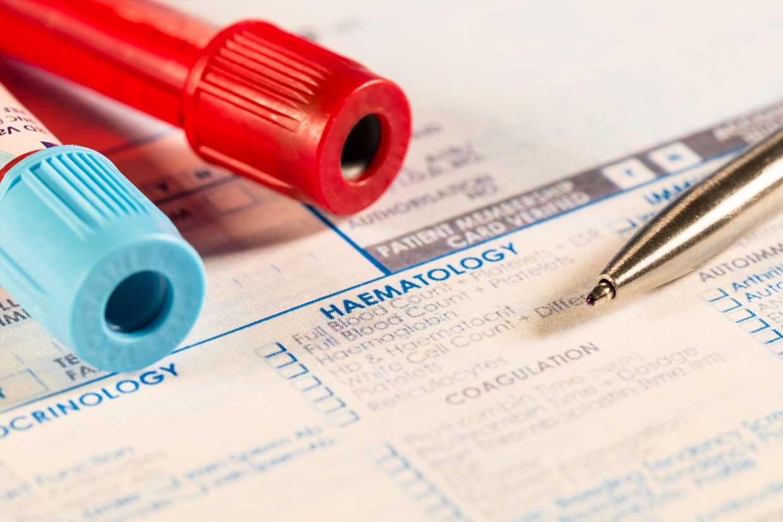 Blutproben zur Bestimmung einer Leukämieerkrankung