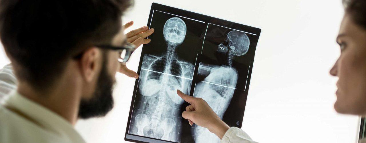 Zwei Ärzte betrachten ein Röntgenbild