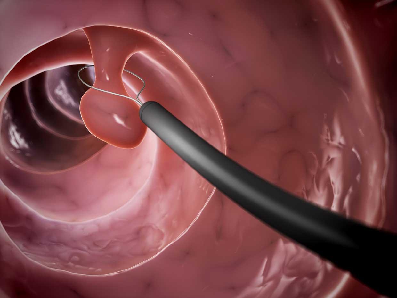 Grafische Darstellung der endoskopischen Entfernung eines Tumors im Darm