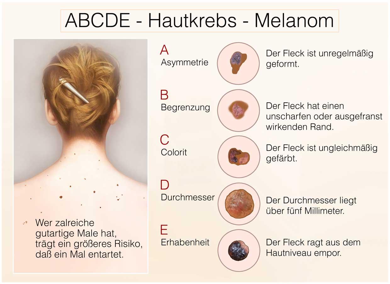 ABCDE-Hautkrebs-Melanom - Untersuchung nach ABCD Regel