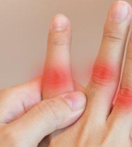 Hand mit schmerzenden Fingern