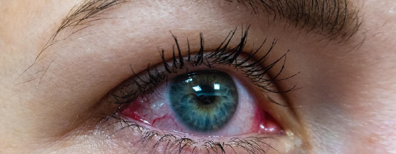 Gerötetes Auge einer Frau in Nahansicht