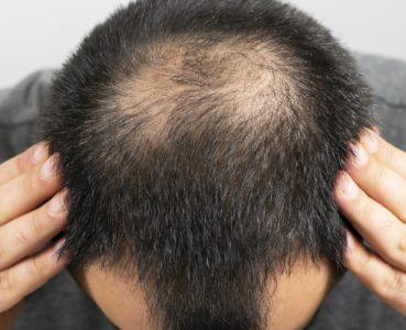 Haarausfall – Die lichten Stellen bekämpfen