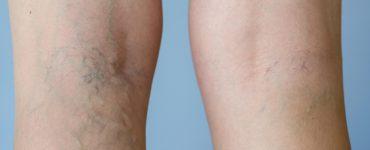 Beine mit Krampfadern