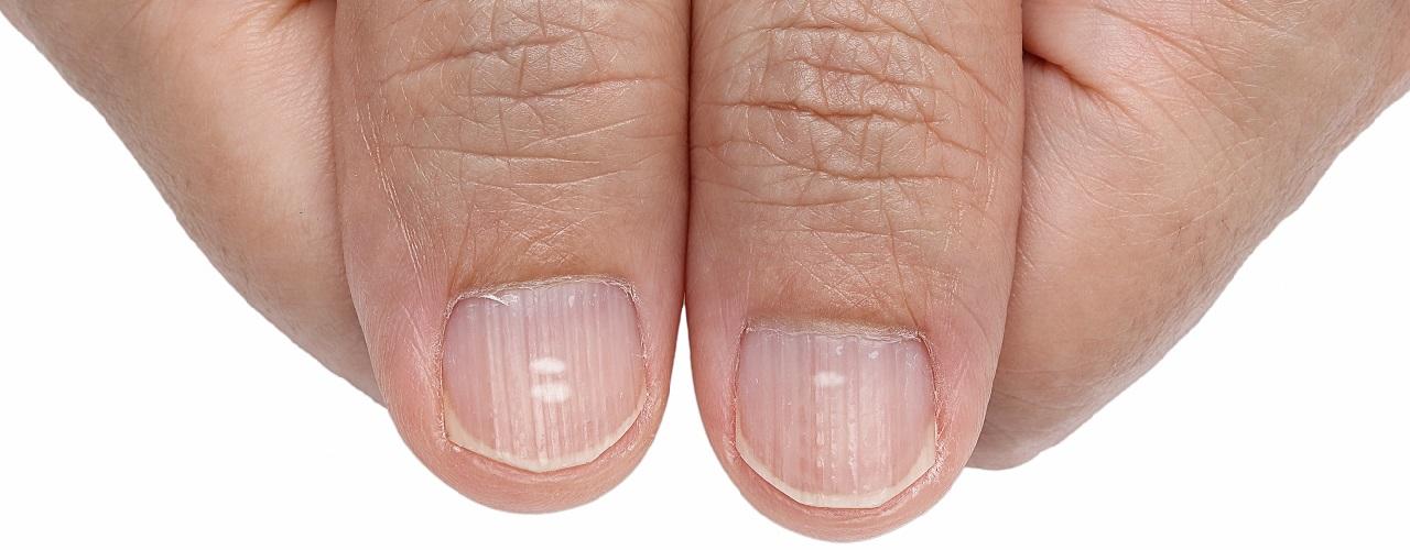 Finger mit weißen Punkten auf den Nägeln in Nahaufnahme