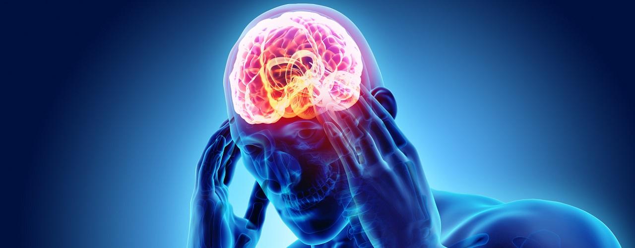 Digitale Darstellung eines Menschen der sich an seinen Kopf aufgrund eines Schlaganfalls fasst
