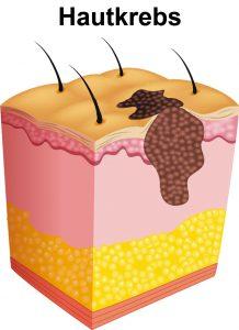 Hautkrebs - Illustration eines Melanoms