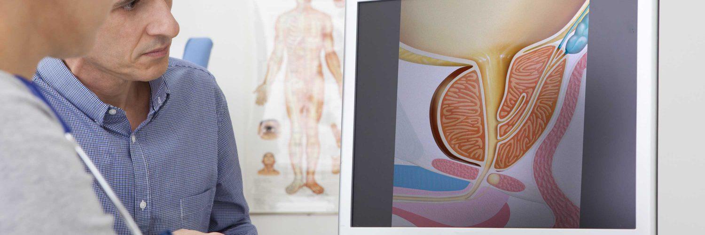 Krebsvorsorge Arztgespräch wegen Prostatakrebs Operation