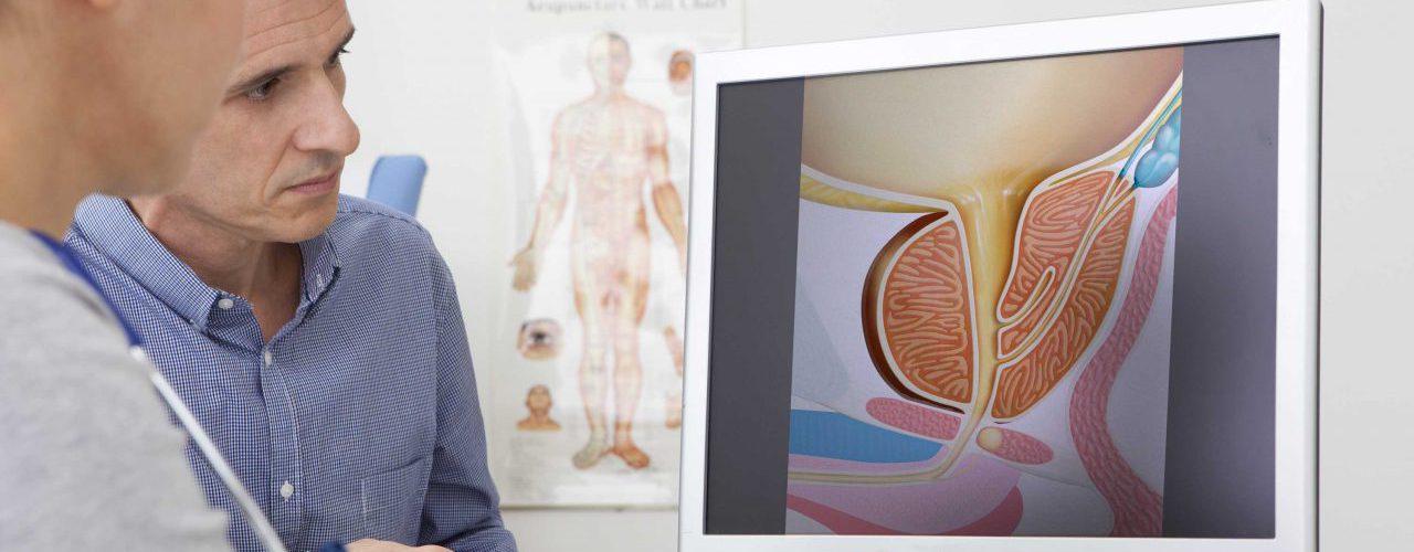 Arztgespräch wegen Prostatakrebs Operation