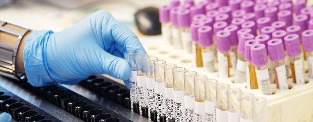Tests mit Reagenzgläsern im Labor